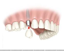 implant truong hop mat 1 rang